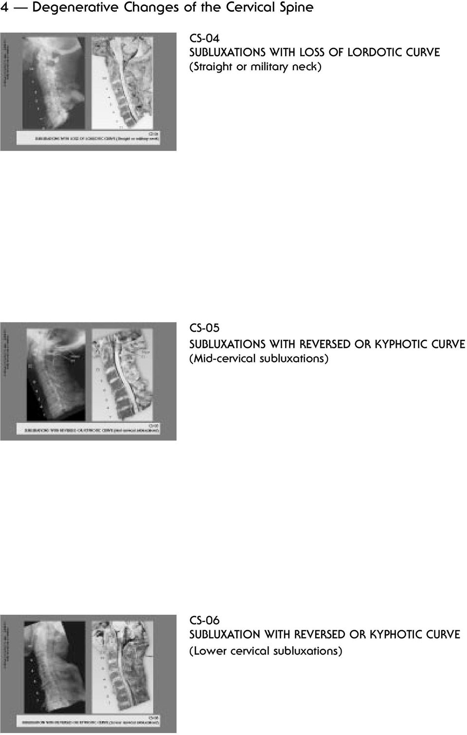 SUBLUXATIONS WITH REVERSED OR KYPHOTIC CURVE (Mid-cervical subluxations) CS-06