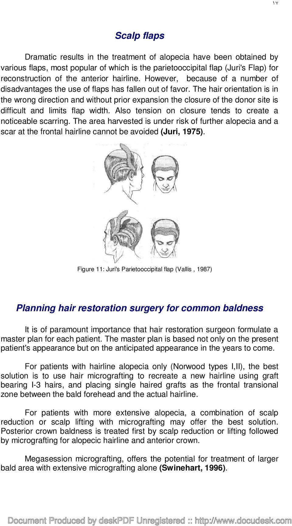 The hair orientation is in the wrong direction and without prior expansion the closure of the donor site is difficult and limits flap width.