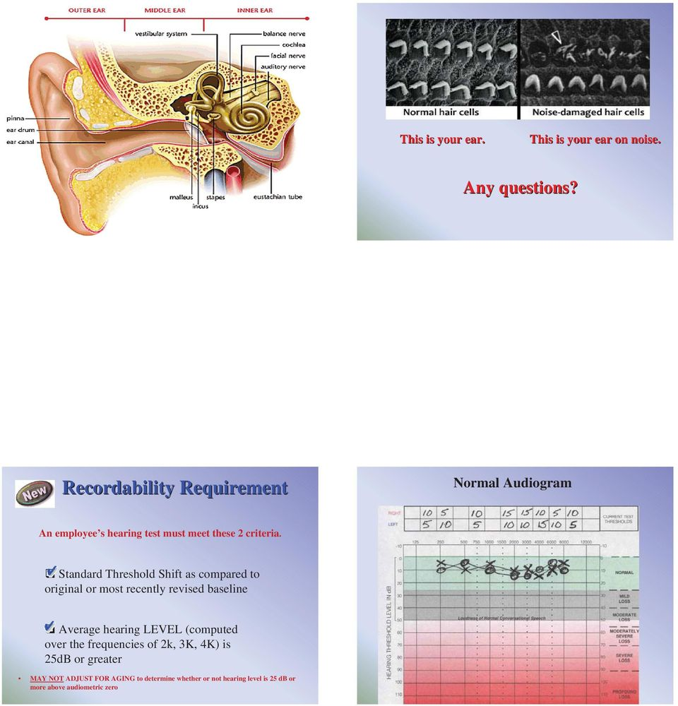 Standard Threshold Shift as compared to original or most recently revised baseline Average hearing LEVEL