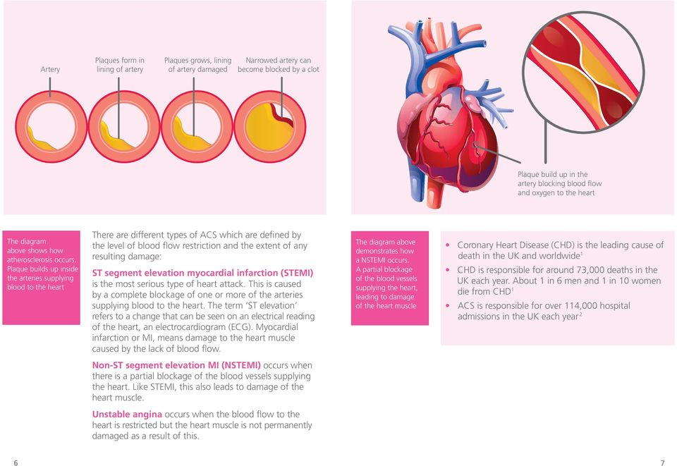 Plaque builds up inside the arteries supplying blood to the heart There are different types of ACS which are defined by the level of blood flow restriction and the extent of any resulting damage: ST