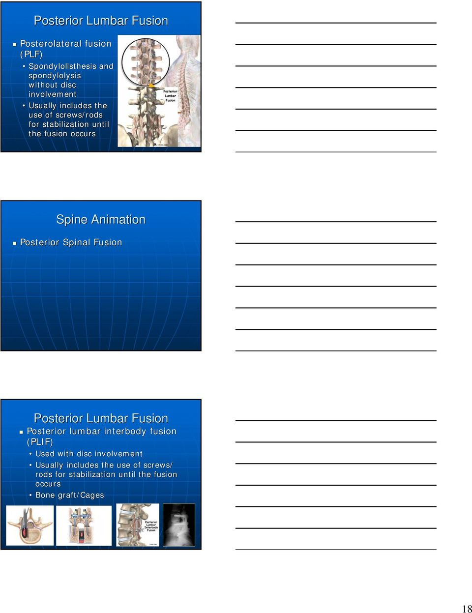 Animation Posterior Spinal Fusion Posterior Lumbar Fusion Posterior lumbar interbody fusion (PLIF) Used