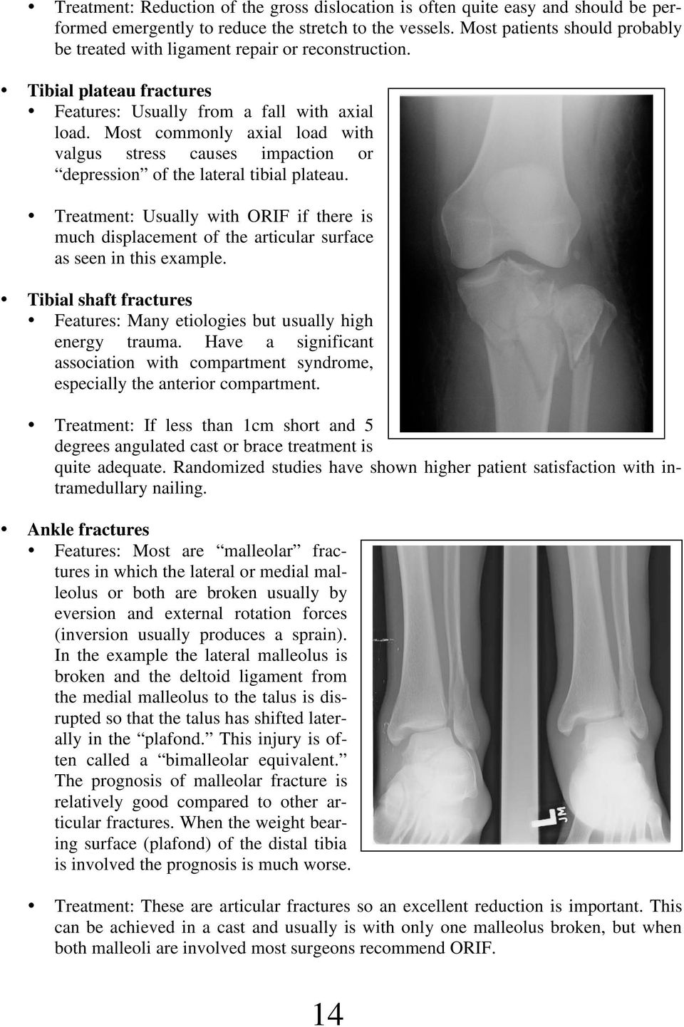 Most commonly axial load with valgus stress causes impaction or depression of the lateral tibial plateau.