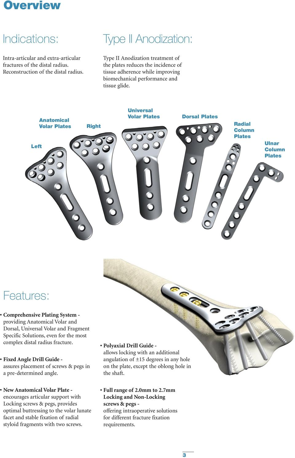 Left Anatomical Volar Plates Right Universal Volar Plates Dorsal Plates Radial Column Plates Ulnar Column Plates Features: Comprehensive Plating System - providing Anatomical Volar and Dorsal,