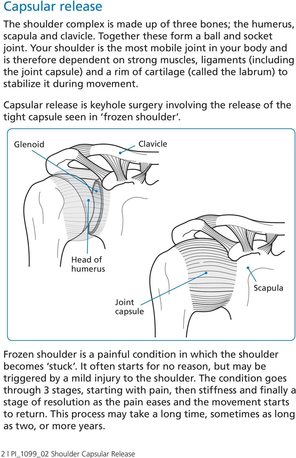during movement. Capsular release is keyhole surgery involving the release of the tight capsule seen in frozen shoulder.