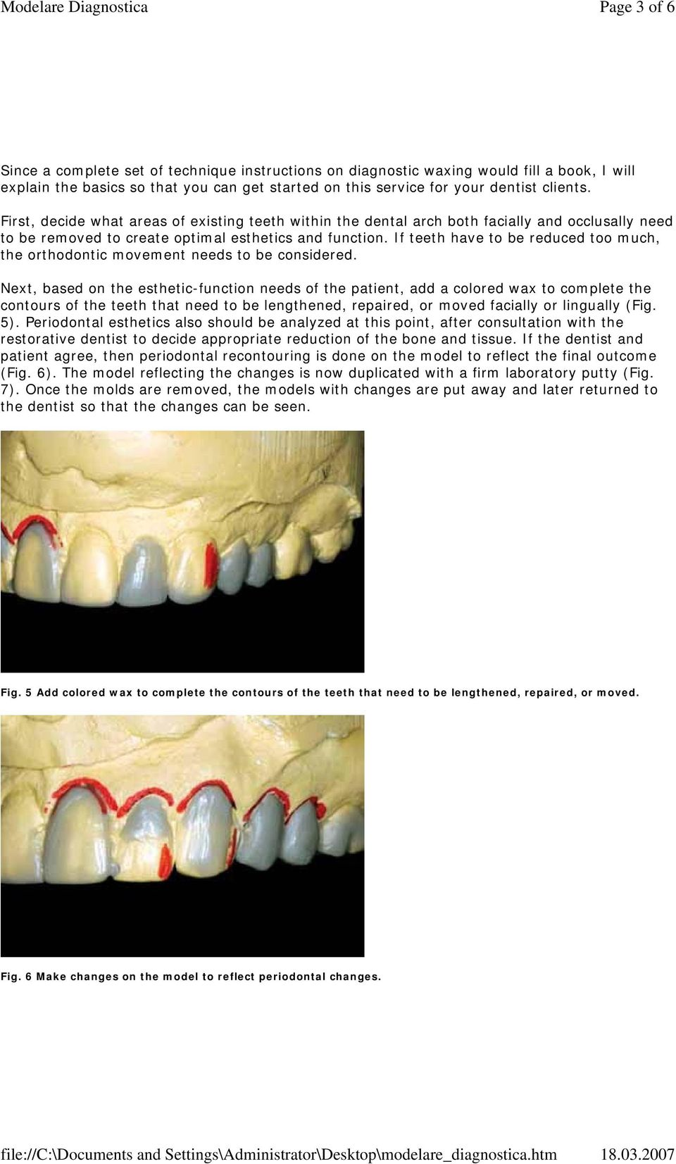 If teeth have to be reduced too much, the orthodontic movement needs to be considered.