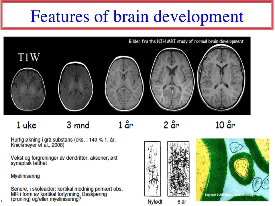 Best brain smart drugs image 4