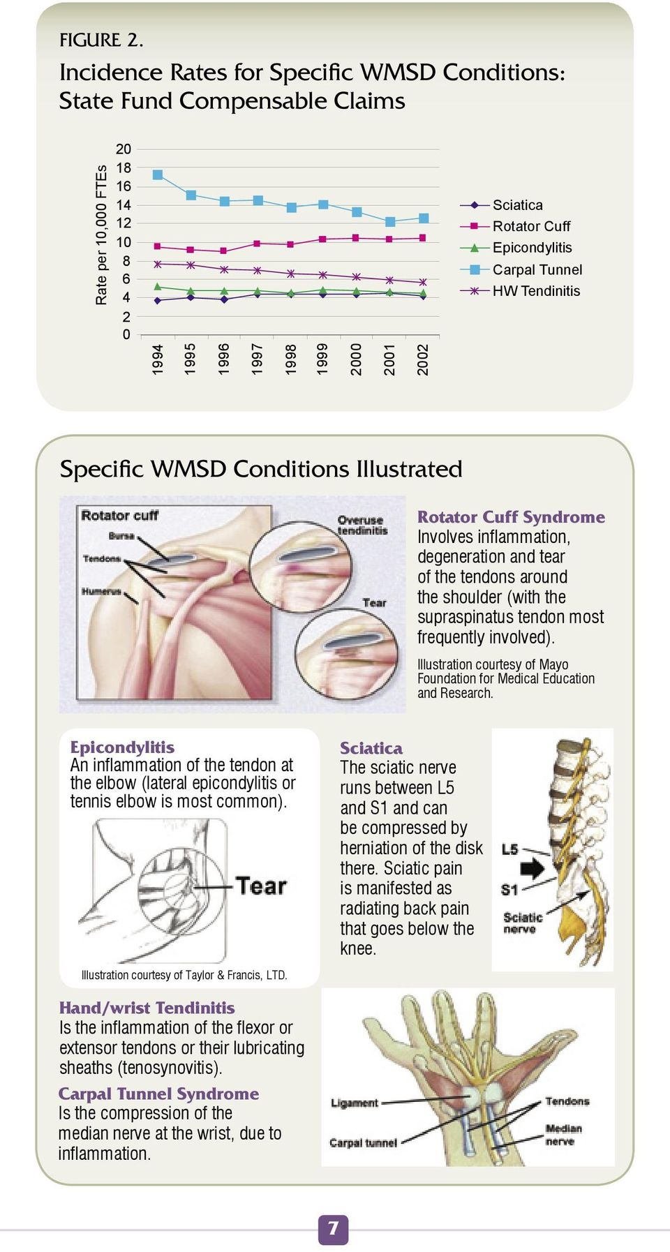 1996 1997 1998 1999 2000 2001 2002 Specific WMSD Conditions Illustrated Rotator Cuff Syndrome Involves inflammation, degeneration and tear of the tendons around the shoulder (with the supraspinatus