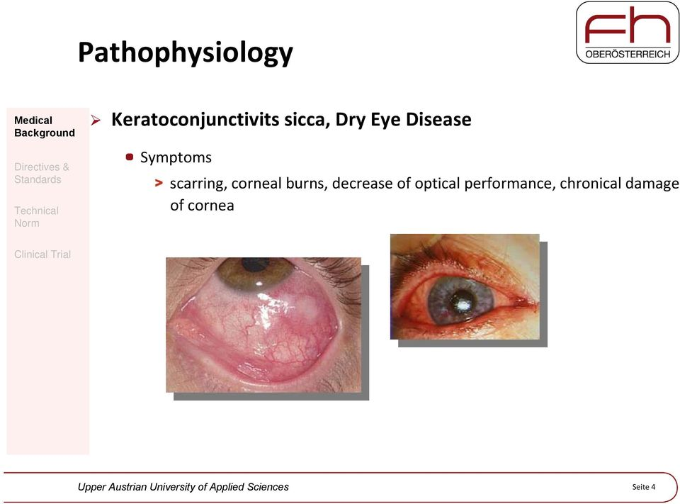 scarring, corneal burns, decrease of