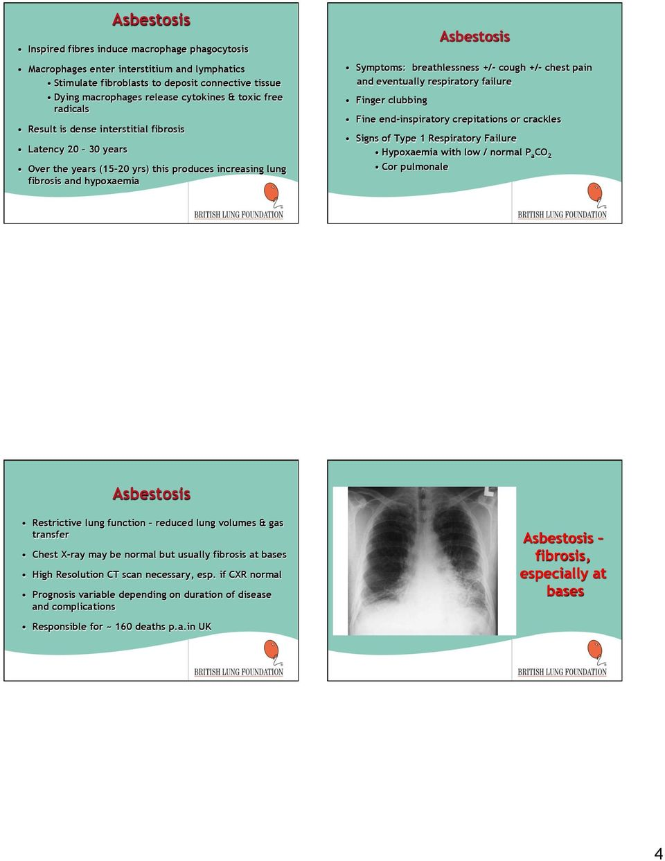 +/- chest pain and eventually respiratory failure Finger clubbing Fine end-inspiratory crepitations or crackles Signs of Type 1 Respiratory Failure Hypoxaemia with low / normal P a CO 2 Cor pulmonale