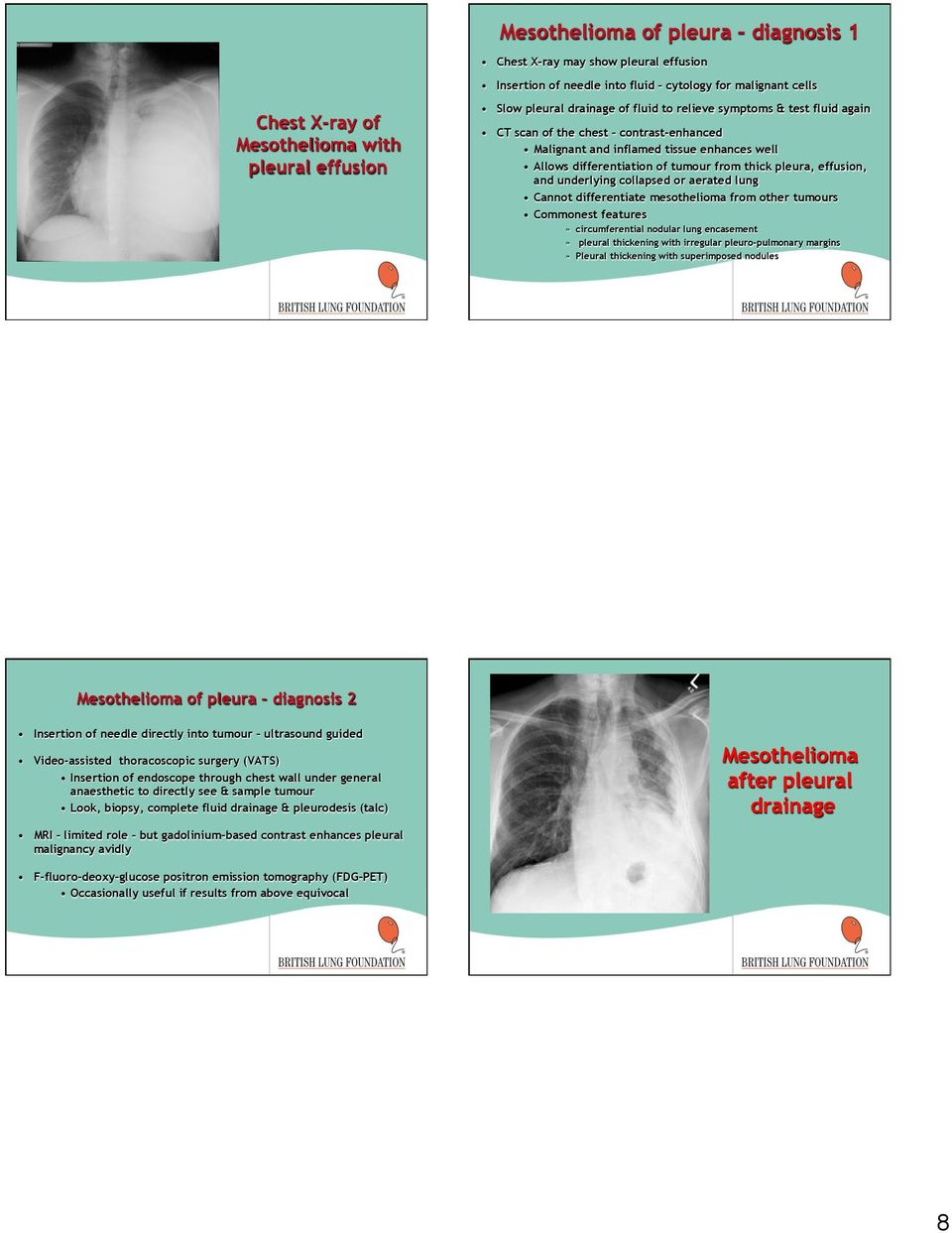 effusion, and underlying collapsed or aerated lung Cannot differentiate mesothelioma from other tumours Commonest features» circumferential nodular lung encasement» pleural thickening with irregular