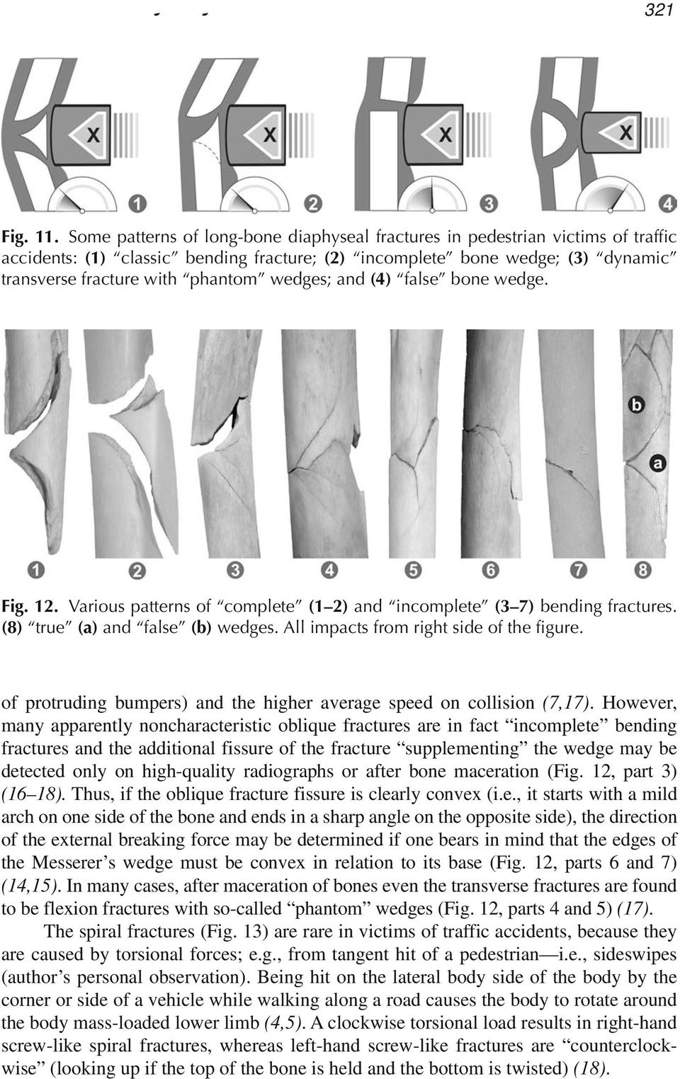 wedges; and (4) false bone wedge. Fig. 12. Various patterns of complete (1 2) and incomplete (3 7) bending fractures. (8) true (a) and false (b) wedges. All impacts from right side of the figure.