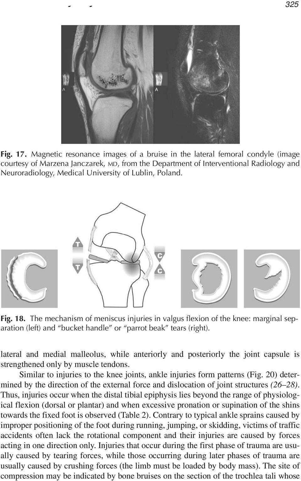 of Lublin, Poland. Fig. 18. The mechanism of meniscus injuries in valgus flexion of the knee: marginal separation (left) and bucket handle or parrot beak tears (right).