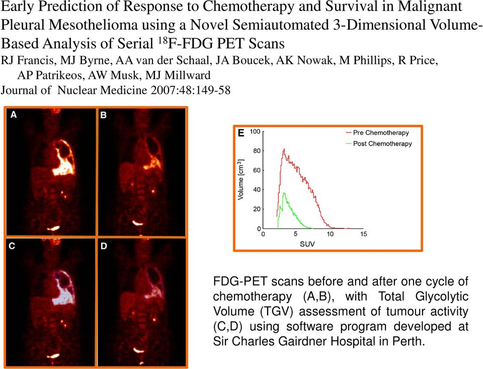 Patrikeos, AW Musk, MJ Millward Journal of Nuclear Medicine 2007:48:149-58 FDG-PET scans before and after one cycle of chemotherapy (A,B),