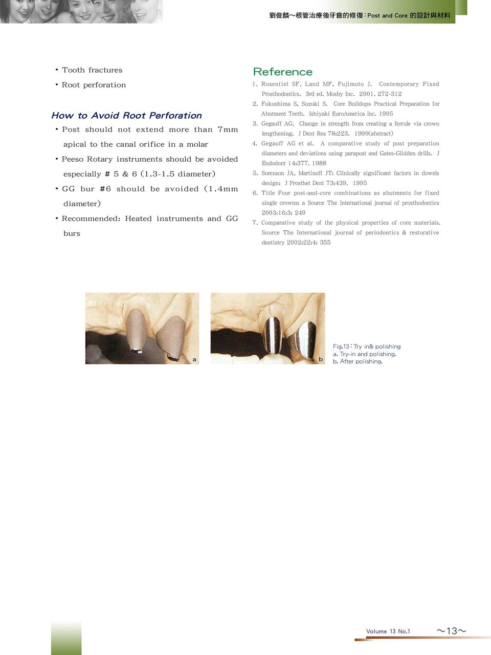 Mosby Inc. 2001. 272-312 2. Fukushima S, Suzuki S. Core Buildups Practical Preparation for Abutment Teeth. Ishiyaki EuroAmerica Inc. 1995 3. Gegauff AG.