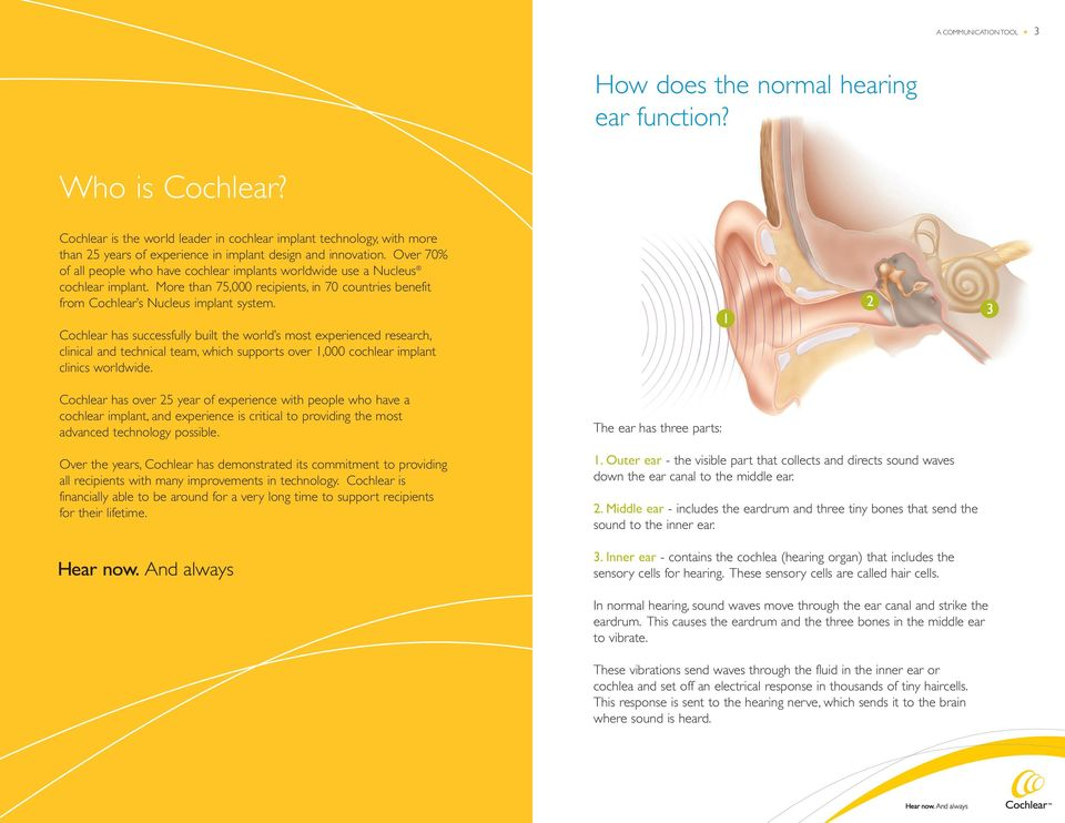 Over 70% of all people who have cochlear implants worldwide use a Nucleus cochlear implant. More than 75,000 recipients, in 70 countries benefit from Cochlear s Nucleus implant system.