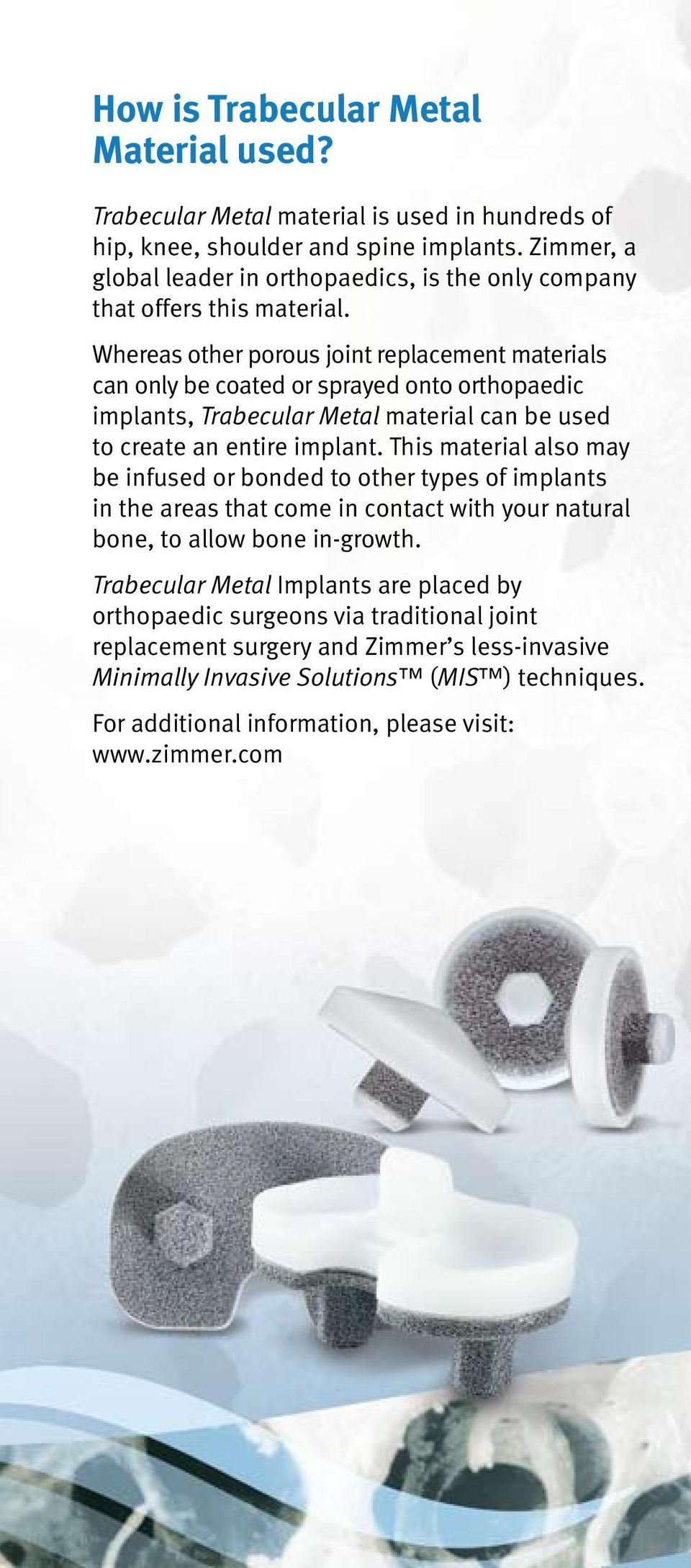 Whereas other porous joint replacement materials can only be coated or sprayed onto orthopaedic implants, Trabecular Metal material can be used to create an entire implant.