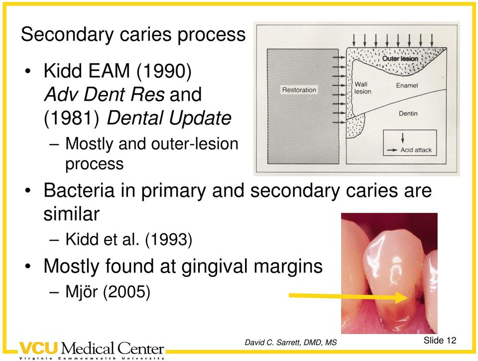 Bacteria in primary and secondary caries are similar Kidd
