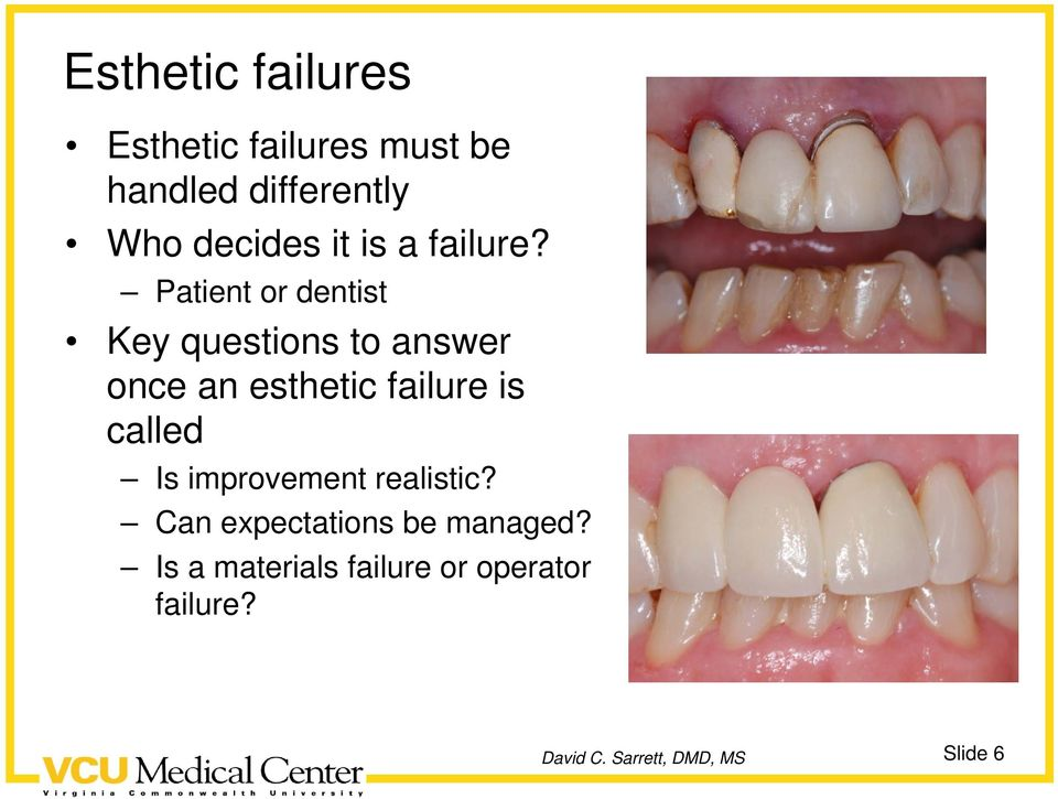 Patient or dentist Key questions to answer once an esthetic failure