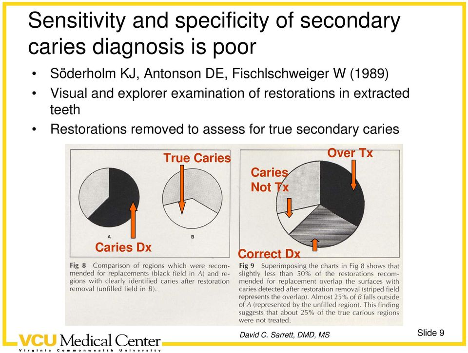 of restorations in extracted teeth Restorations removed to assess for true