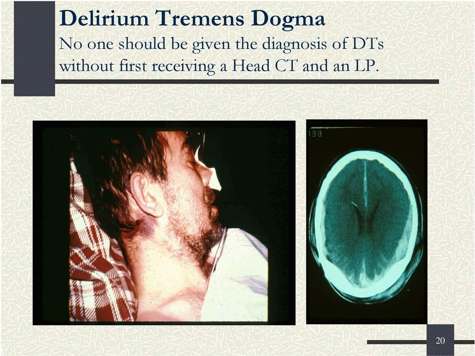 diagnosis of DTs without