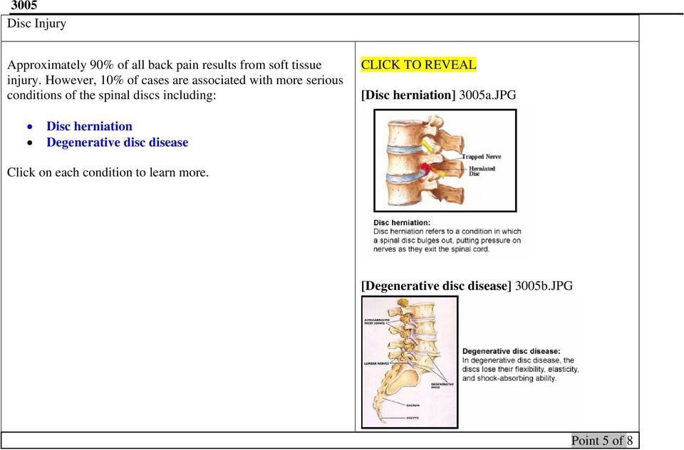 including: CLICK TO REVEAL [Disc herniation] 3005a.