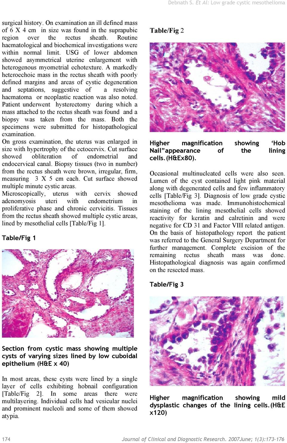 A markedly heteroechoic mass in the rectus sheath with poorly defined margins and areas of cystic degeneration and septations, suggestive of a resolving haematoma or neoplastic reaction was also