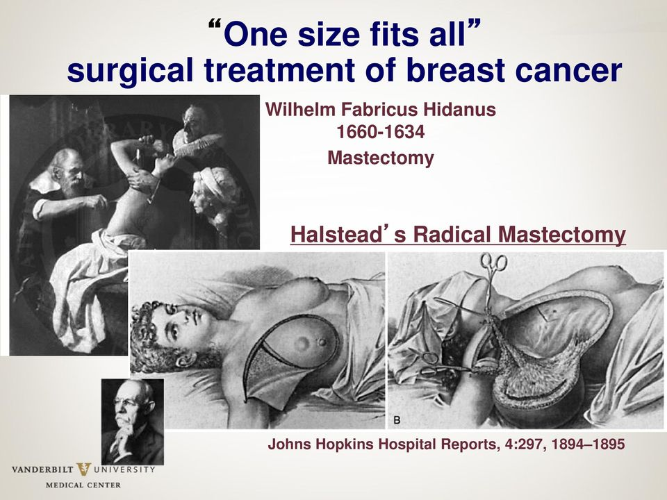 1660-1634 Mastectomy Halstead s Radical