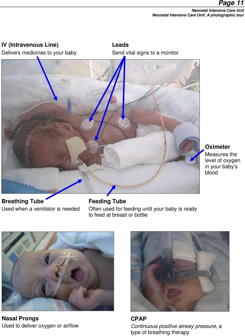 ventilator is needed Feeding Tube Often used for feeding until your baby is ready to feed at breast or