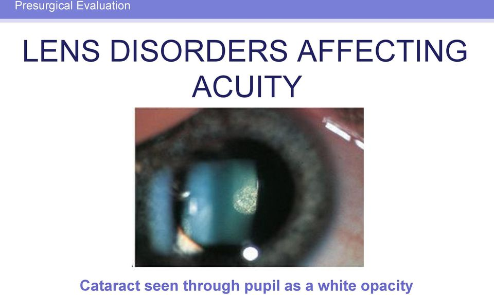 ACUITY Cataract seen