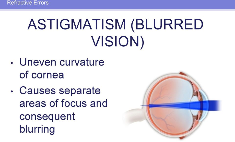 cornea Causes separate areas of