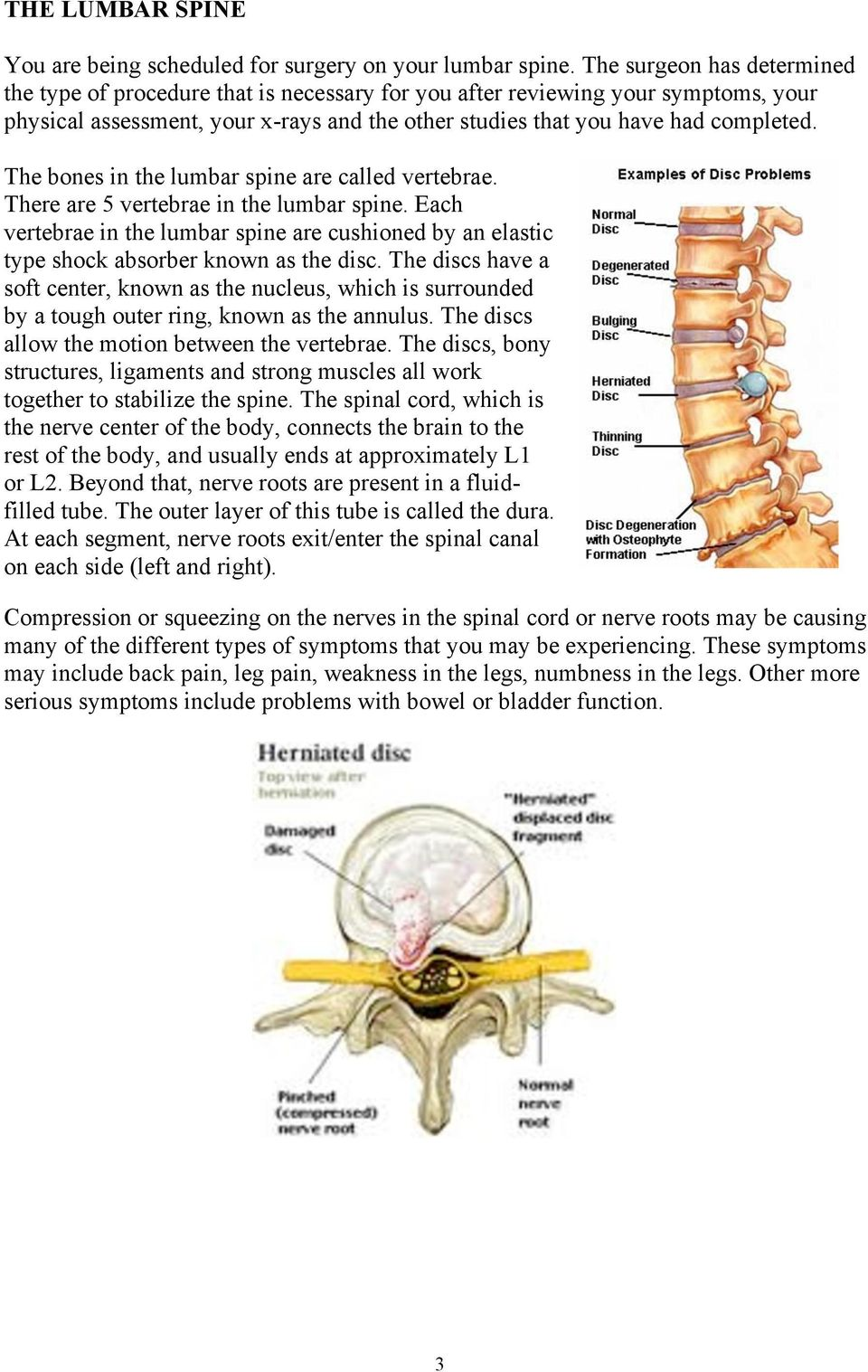 The bones in the lumbar spine are called vertebrae. There are 5 vertebrae in the lumbar spine. Each vertebrae in the lumbar spine are cushioned by an elastic type shock absorber known as the disc.