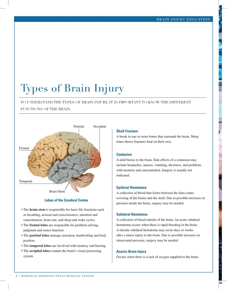 Frontal Temporal Brain Stem Lobes of the Cerebral Cortex Contusion A mild bruise to the brain.