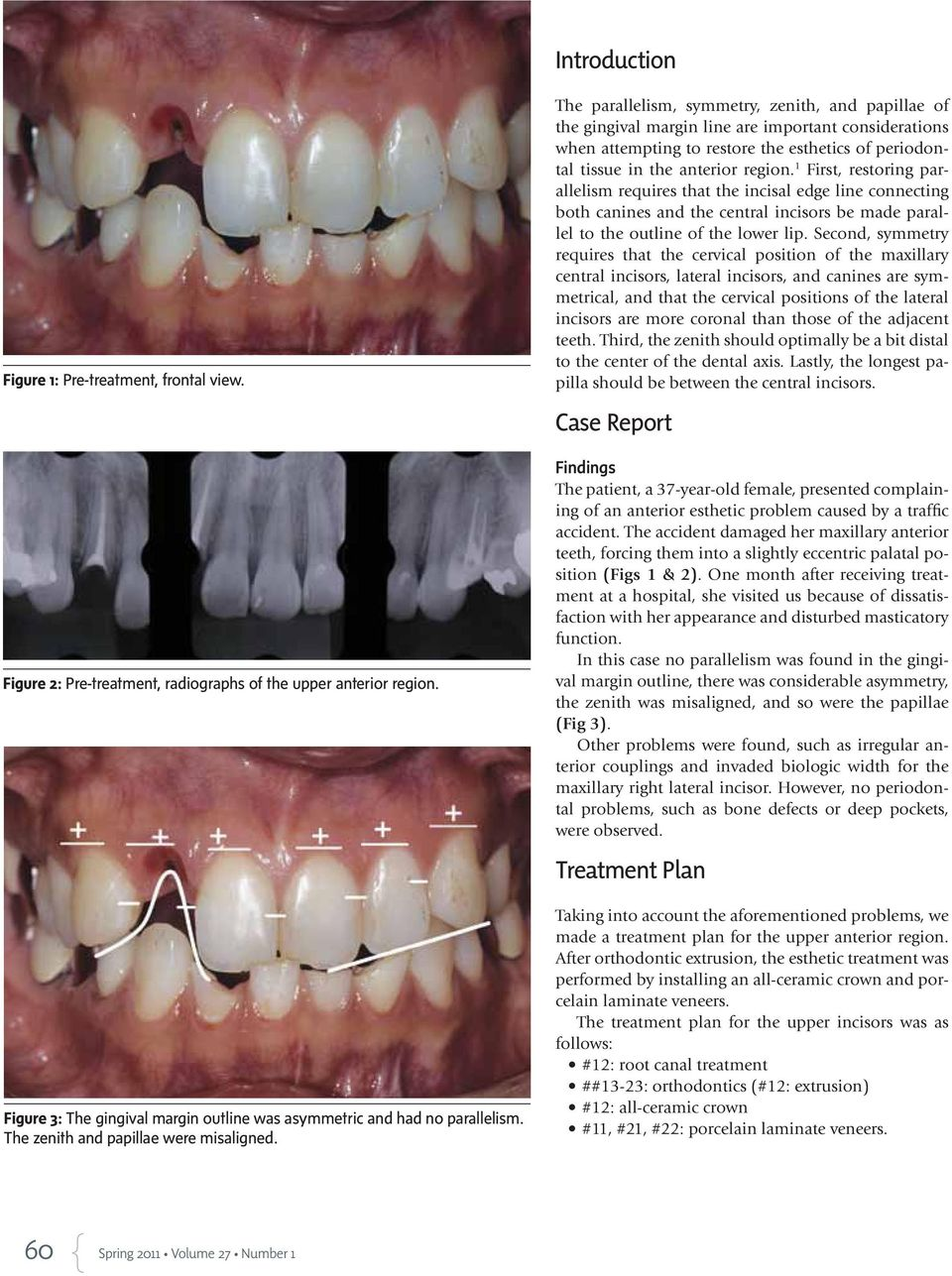 1 First, restoring parallelism requires that the incisal edge line connecting both canines and the central incisors be made parallel to the outline of the lower lip.