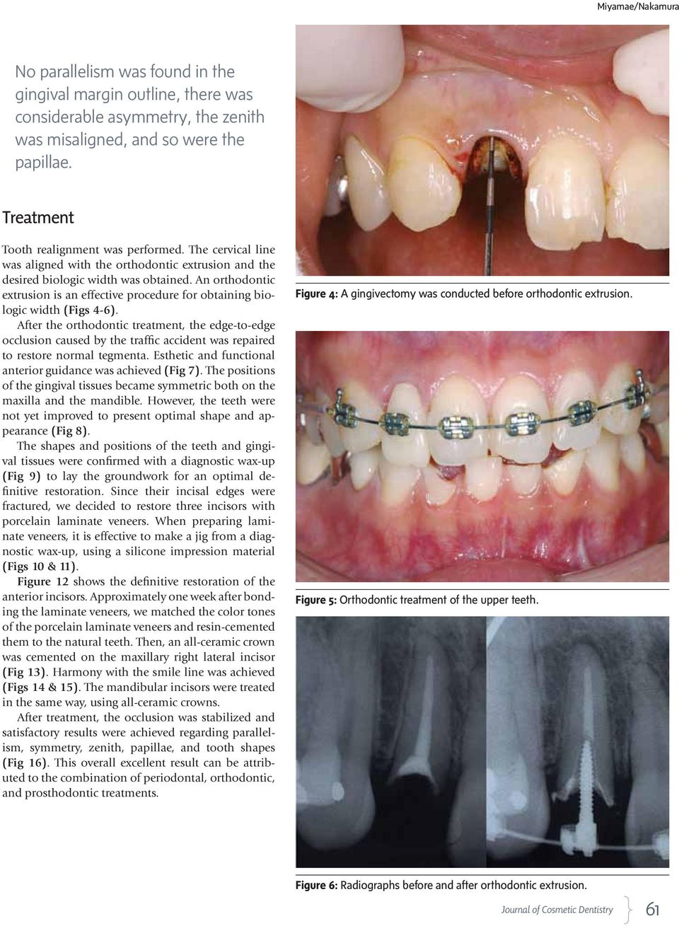 An orthodontic extrusion is an effective procedure for obtaining biologic width (Figs 4-6).