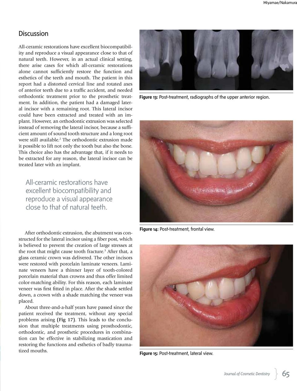 The patient in this report had a distorted cervical line and rotated axes of anterior teeth due to a traffic accident, and needed orthodontic treatment prior to the prosthetic treatment.