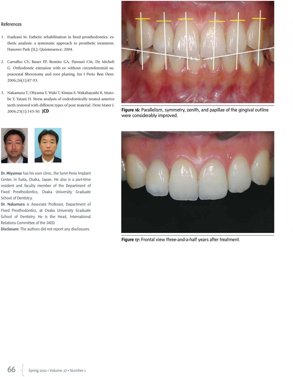 2006;26(1):87-93. 3. Nakamura T, Ohyama T, Waki T, Kinuta S, Wakabayashi K, Mutobe Y, Yatani H. Stress analysis of endodontically treated anterior teeth restored with different types of post material.