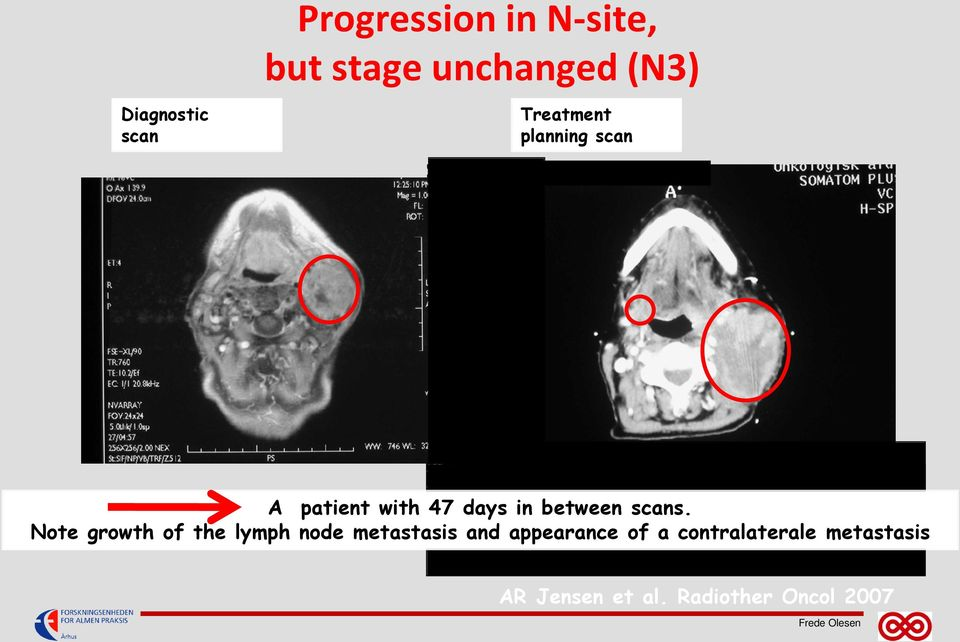 Note growth of the lymph node metastasis and appearance of a