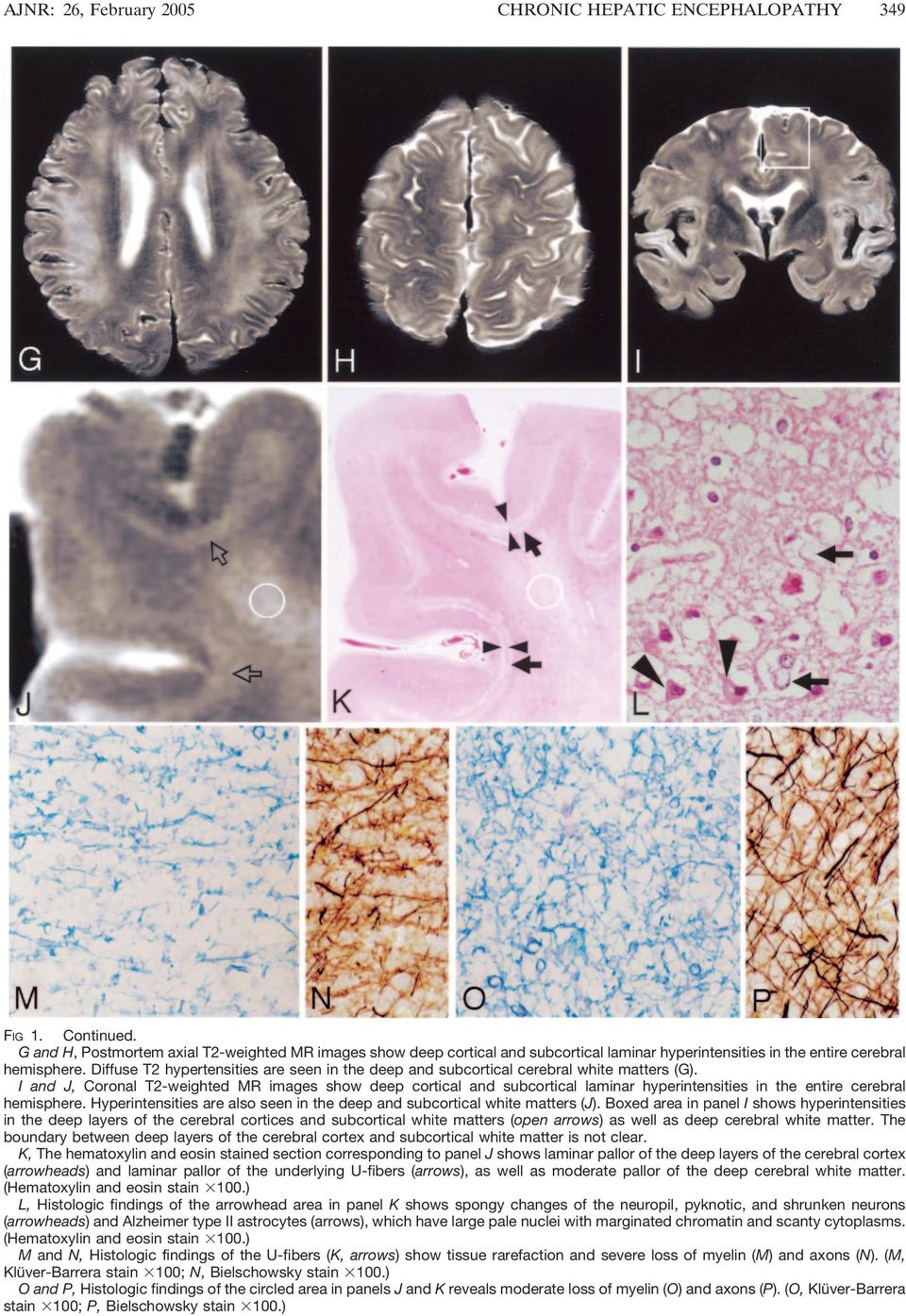 Diffuse T2 hypertensities are seen in the deep and subcortical cerebral white matters (G).