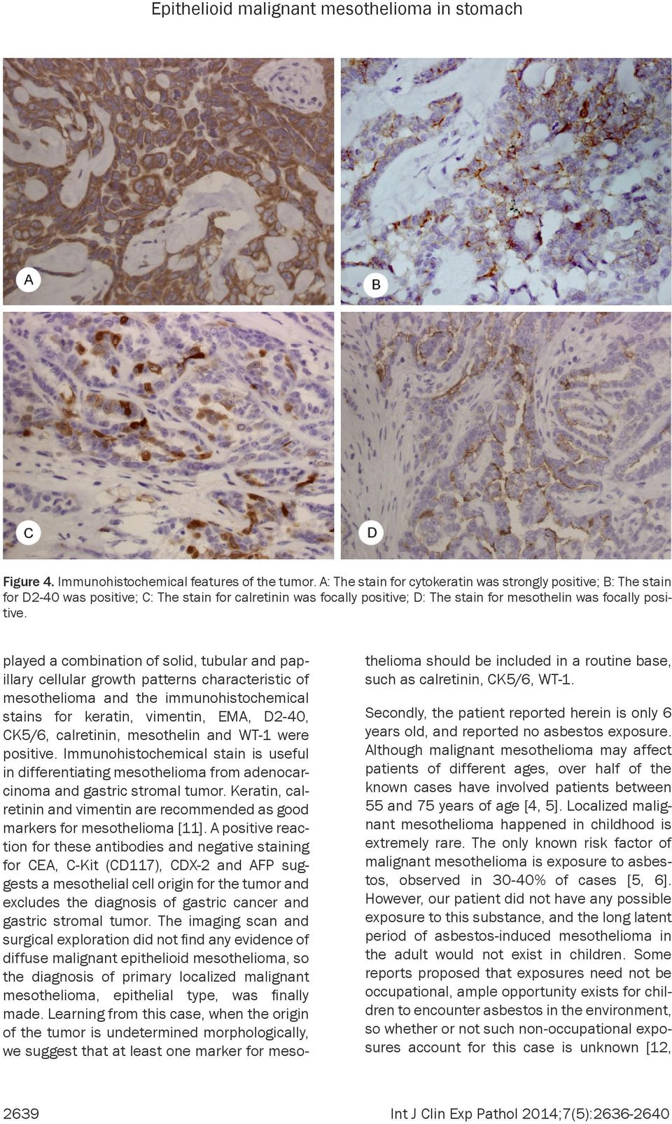 played a combination of solid, tubular and papillary cellular growth patterns characteristic of mesothelioma and the immunohistochemical stains for keratin, vimentin, EMA, D2-40, CK5/6, calretinin,