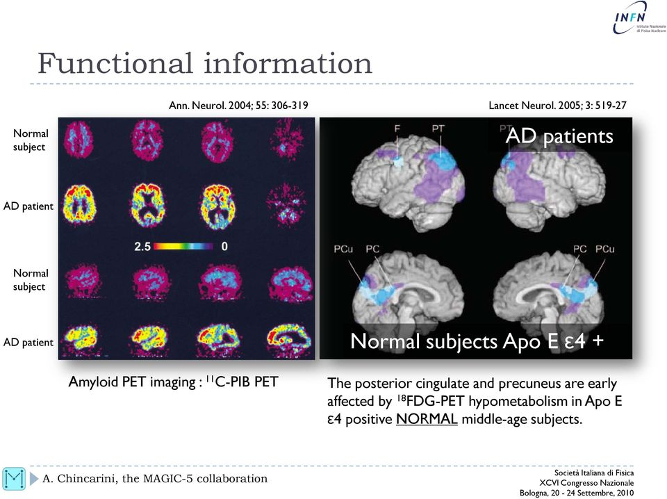 ε4 + Amyloid PET imaging : 11 C-PIB PET The posterior cingulate and precuneus are