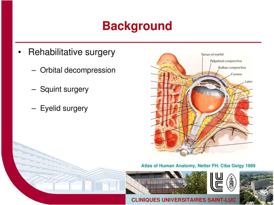 Eyelid surgery Background Atlas