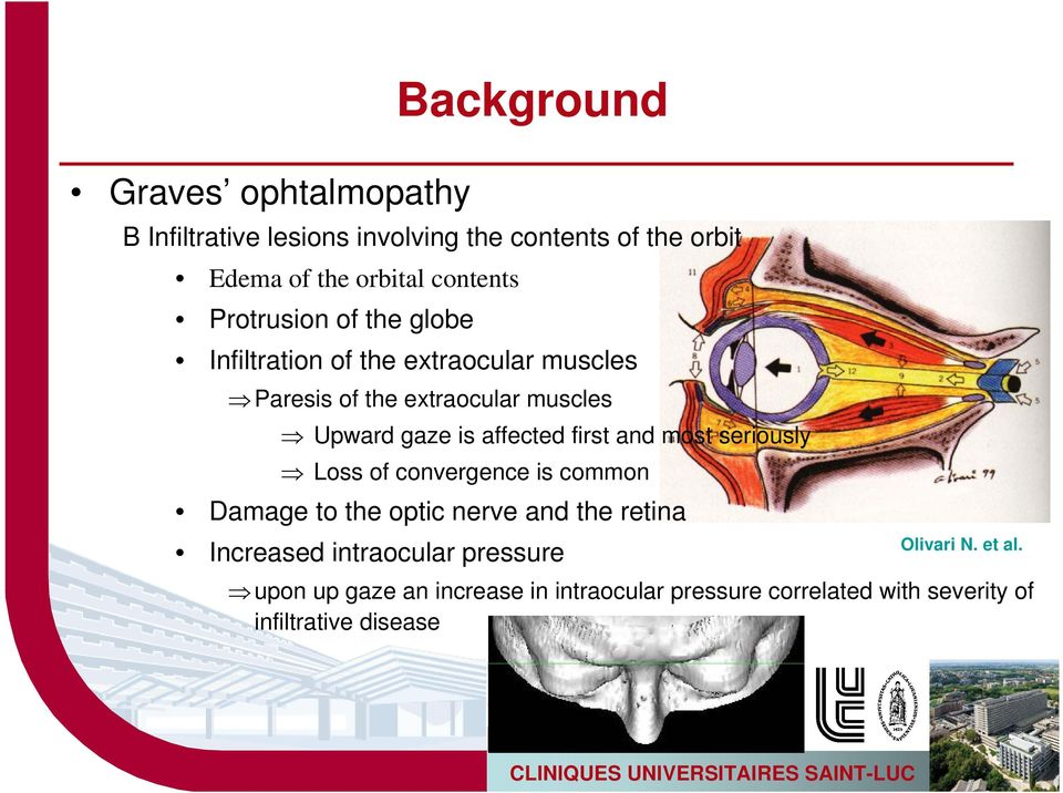 affected first and most seriously Loss of convergence is common Damage to the optic nerve and the retina Increased