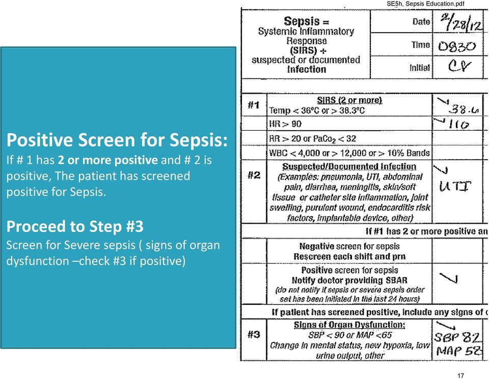 positive for Sepsis.