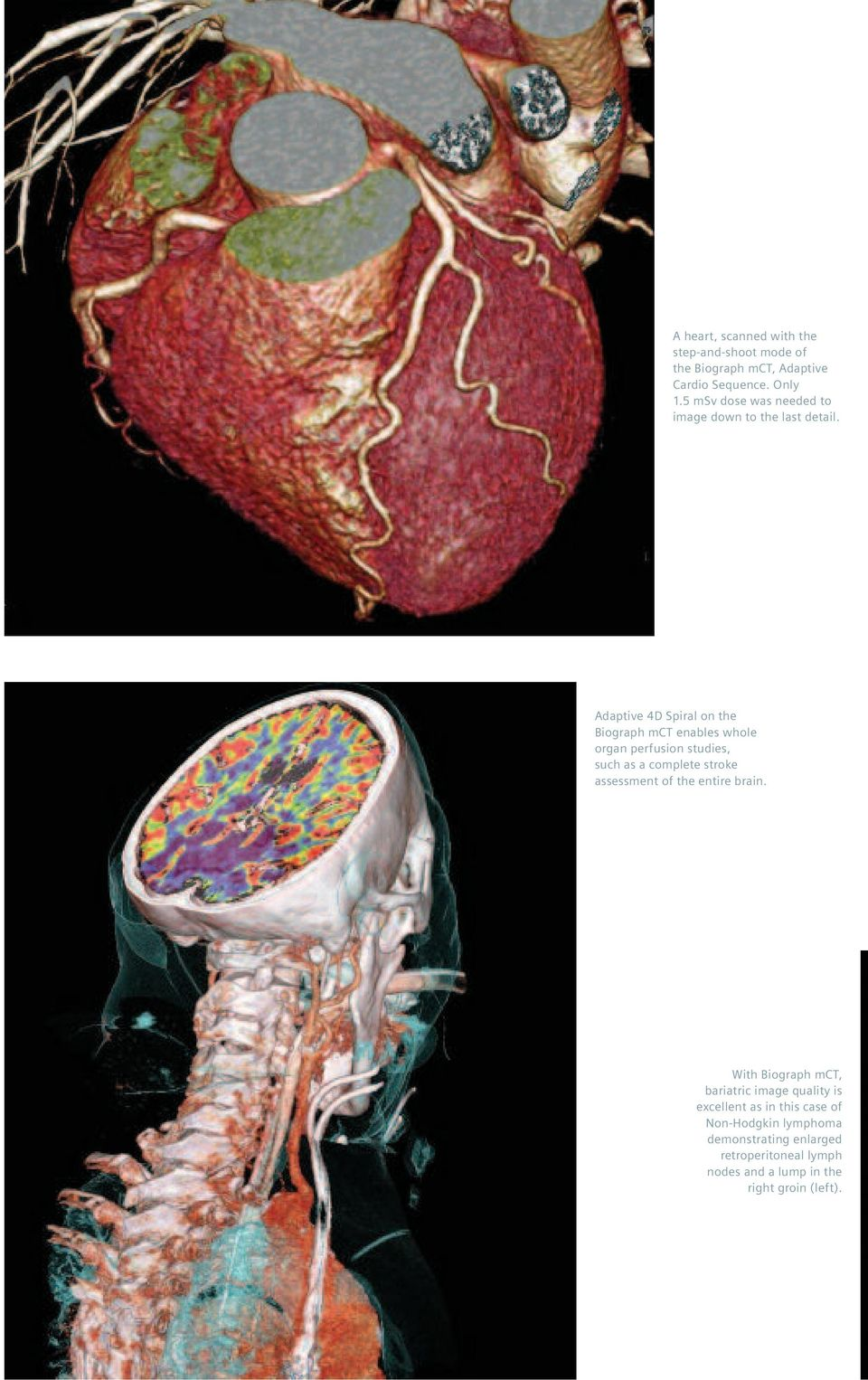 Adaptive 4D Spiral on the Biograph mct enables whole organ perfusion studies, such as a complete stroke assessment of