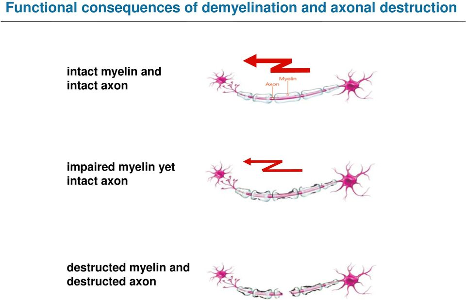 intact axon impaired myelin yet intact