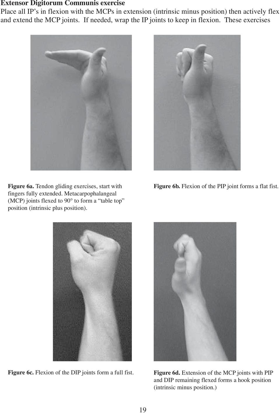 Metacarpophalangeal (MCP) joints flexed to 90 to form a table top position (intrinsic plus position). Figure 6b. Flexion of the PIP joint forms a flat fist.