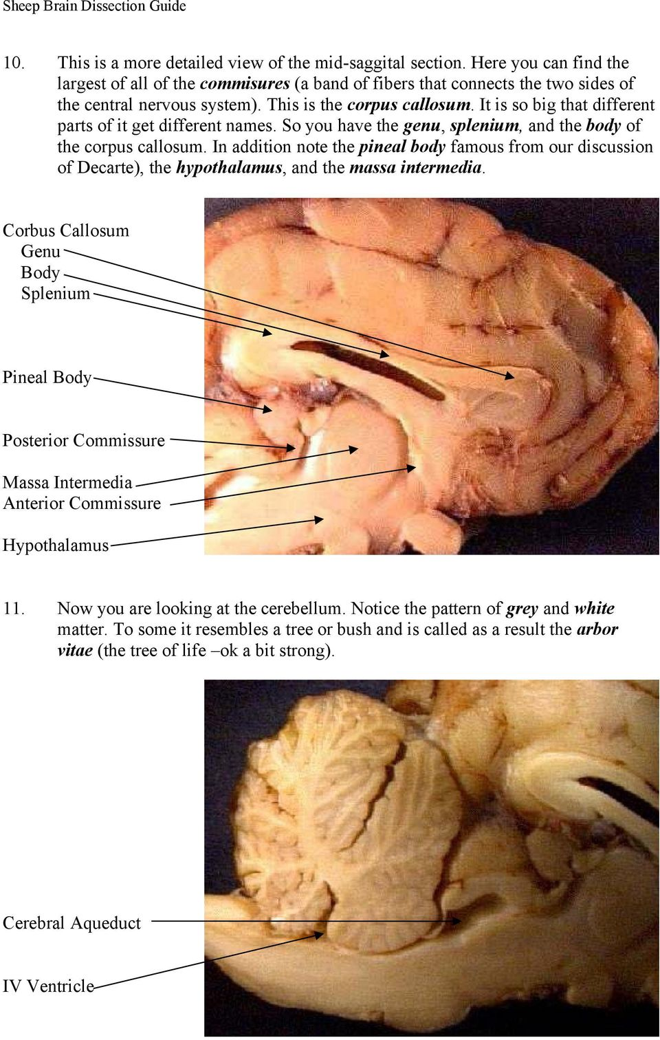 In addition note the pineal body famous from our discussion of Decarte), the hypothalamus, and the massa intermedia.