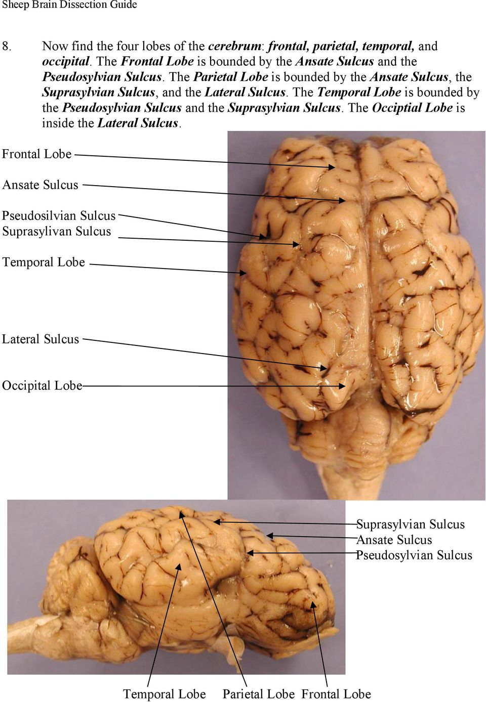The Parietal Lobe is bounded by the Ansate Sulcus, the Suprasylvian Sulcus, and the Lateral Sulcus.