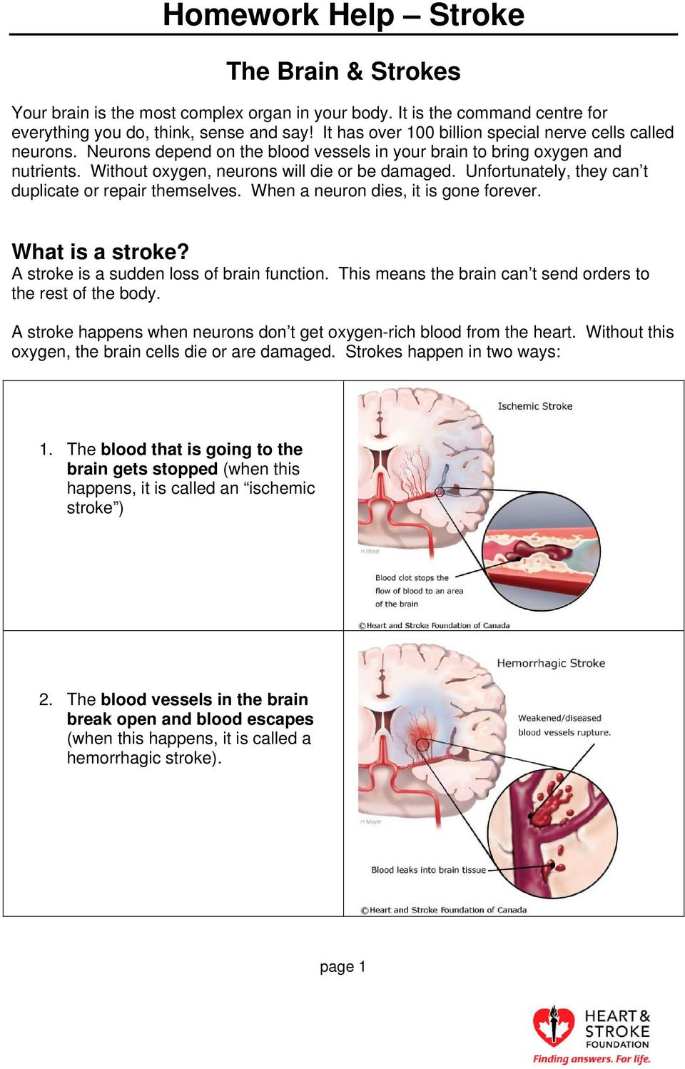 When a neuron dies, it is gone forever. What is a stroke? A stroke is a sudden loss of brain function. This means the brain can t send orders to the rest of the body.