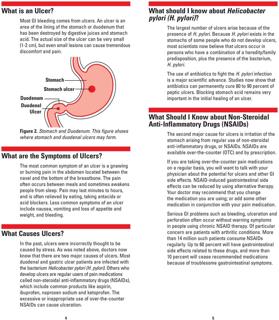 This figure shows where stomach and duodenal ulcers may form. What are the Symptoms of Ulcers?